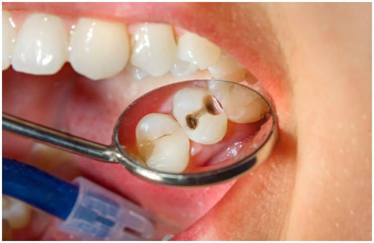 Cavities – Spiritual Meaning