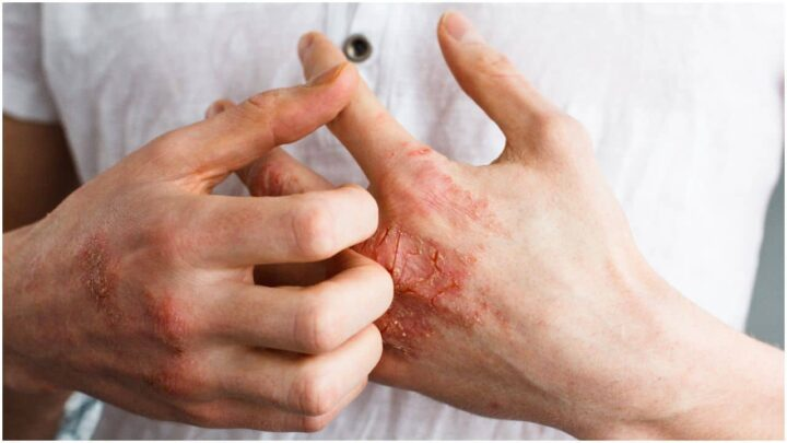 Eczema – Spiritual Meaning, Causes and Healing