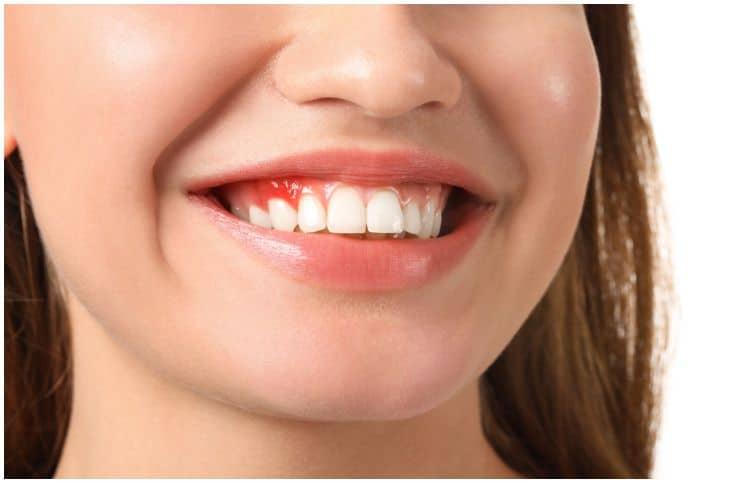 Gum Disease – Spiritual Meaning
