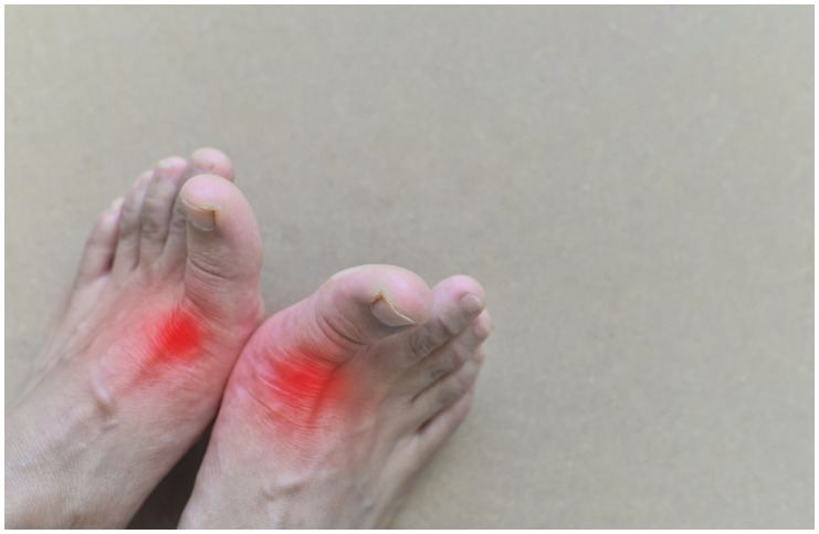 Spiritual Meaning And Causes Of Gout (Gouty Arthritis)