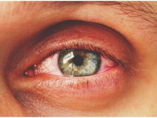 Conjunctivitis (Pinkeye) - Spiritual Meaning, Symptoms, Causes, Treatment, Prevention