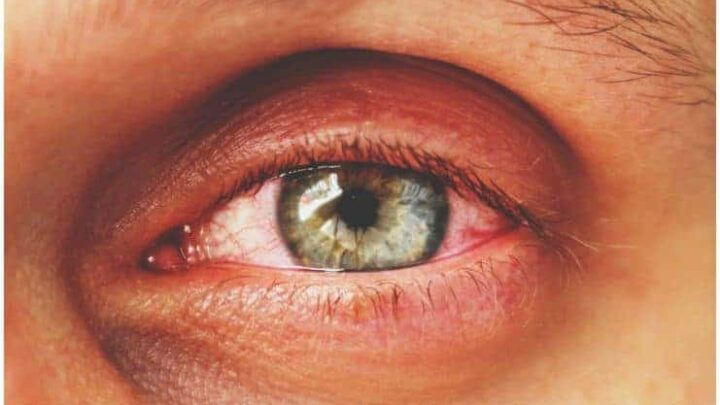 Conjunctivitis (Pinkeye) – Spiritual Meaning, Symptoms, Causes, Treatment, Prevention