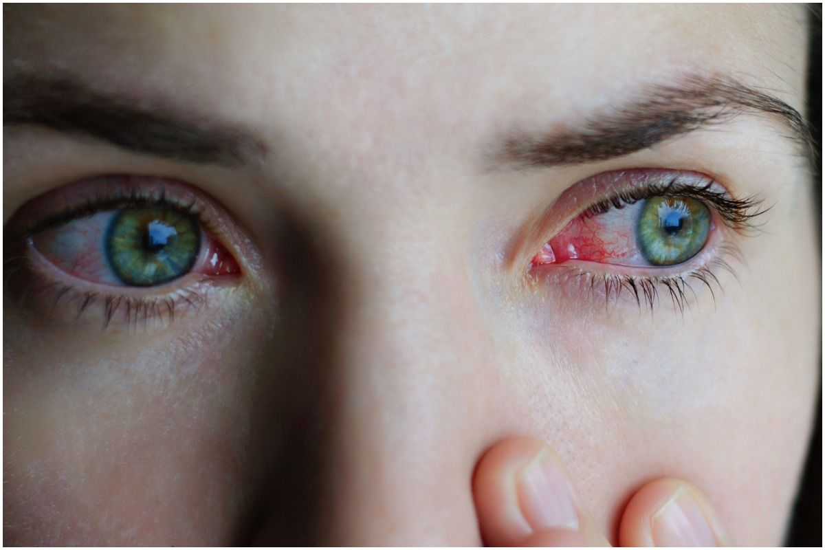 Spiritual Meaning Of Conjunctivitis
