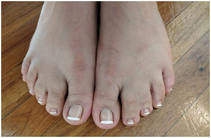 Spiritual Meaning Of Webbed Toes (Syndactyly)