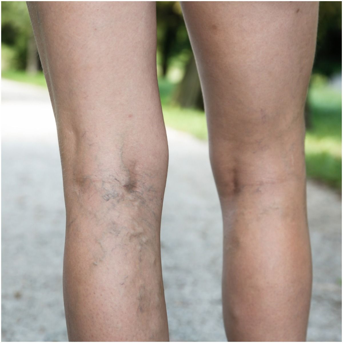 Spiritual Meaning of Varicose Veins