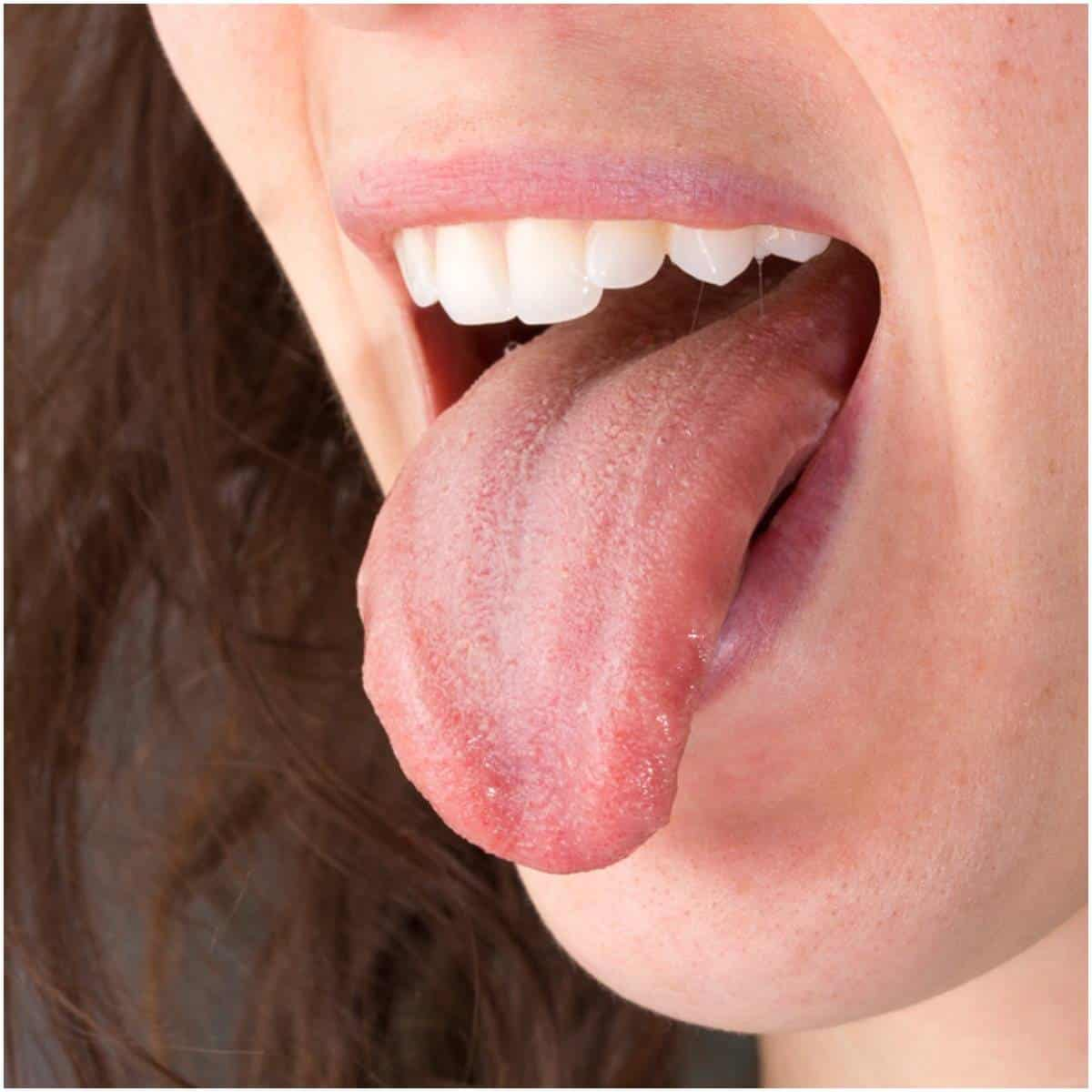 Symptoms of qi deficiency related to the tongue