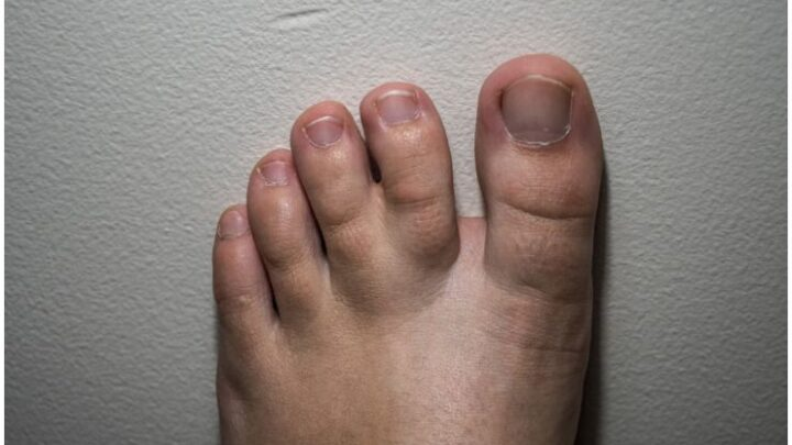 Syndactyly (Webbed Toes) – Spiritual Meaning & Causes