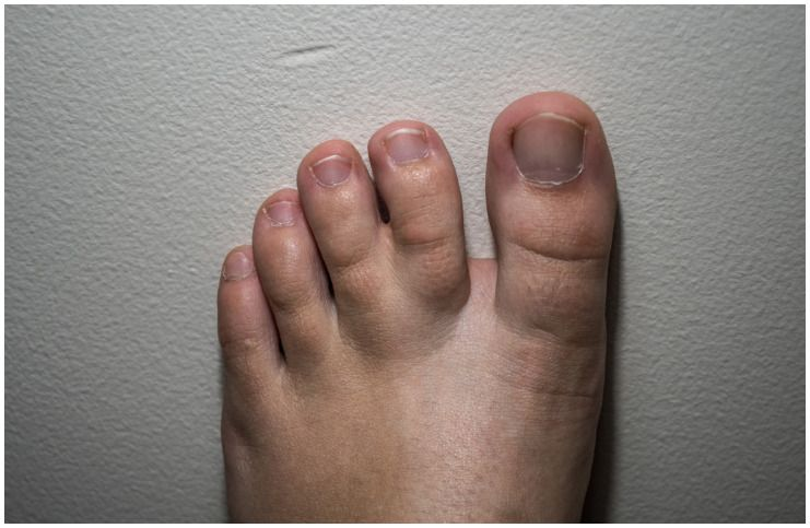 Syndactyly (Webbed Toes) - Spiritual Meaning & Causes