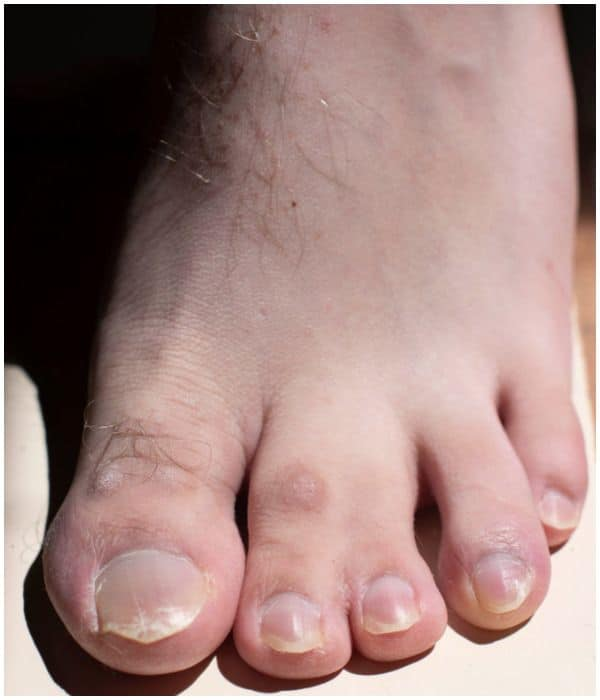 Webbed Toes (Syndactyly) on a foot