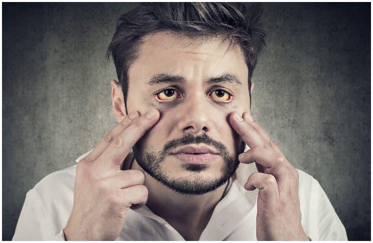 man with Hepatitis