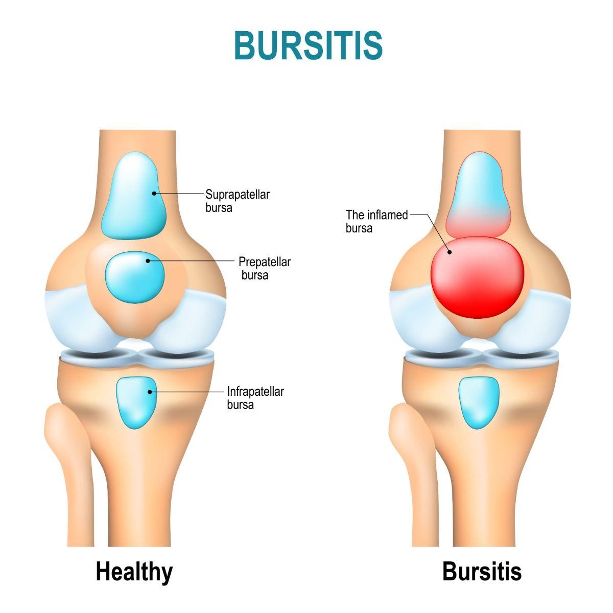Bursitis Tendinitis – Spiritual Meaning & Causes