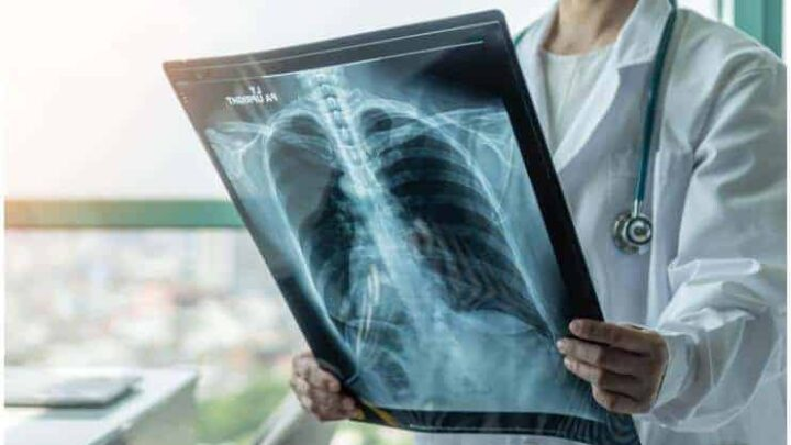 Tuberculosis – Spiritual Meaning, Symptoms, Causes, And Prevention
