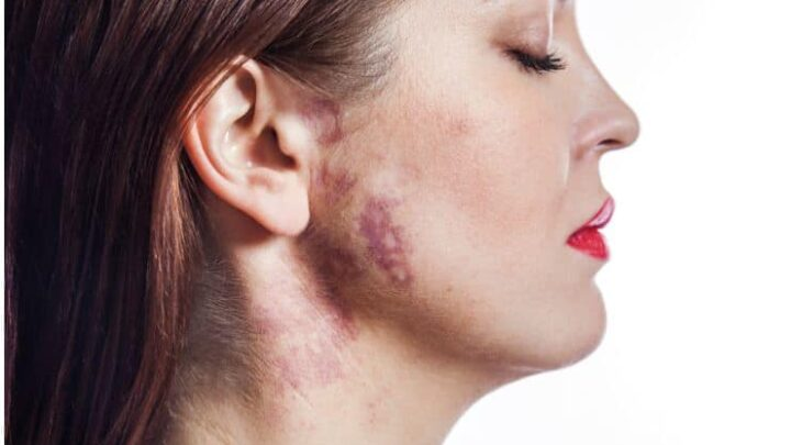 Birthmarks – Spiritual Meanings & Superstitions