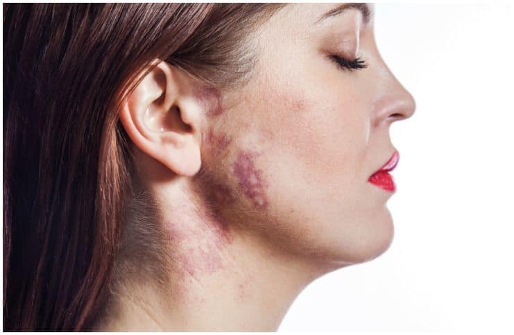 Birthmarks - Spiritual Meanings & Superstitions