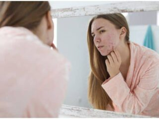 Acne, Psoriasis, Vitiligo & Skin Cancer - Spiritual Meaning and Emotional Causes