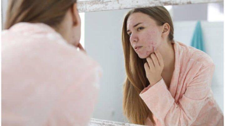 Acne, Psoriasis, Vitiligo & Skin Cancer – Spiritual Meaning and Emotional Causes