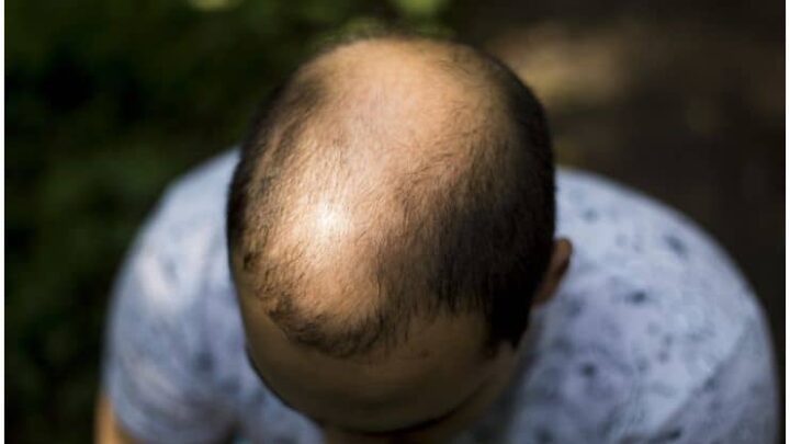 Hair Loss – Spiritual Cause, Meaning and Healing