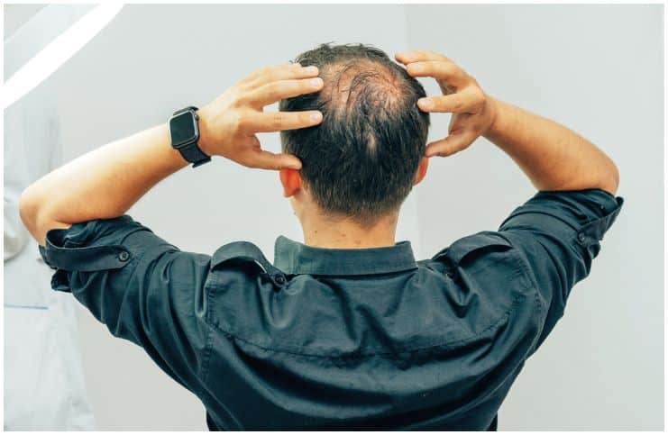 Spiritual Meaning Of Hair Loss
