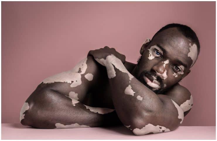 Spiritual Meaning and Emotional Causes of Vitiligo