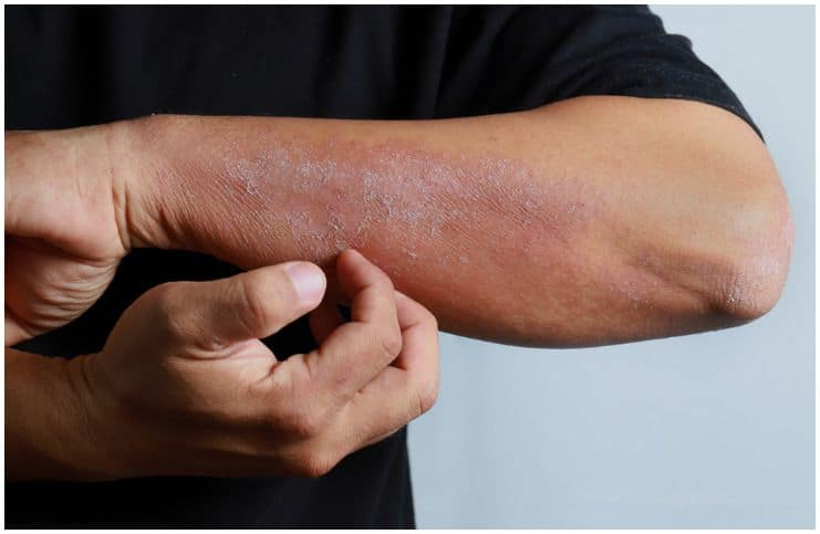 Spiritual Causes of Eczema