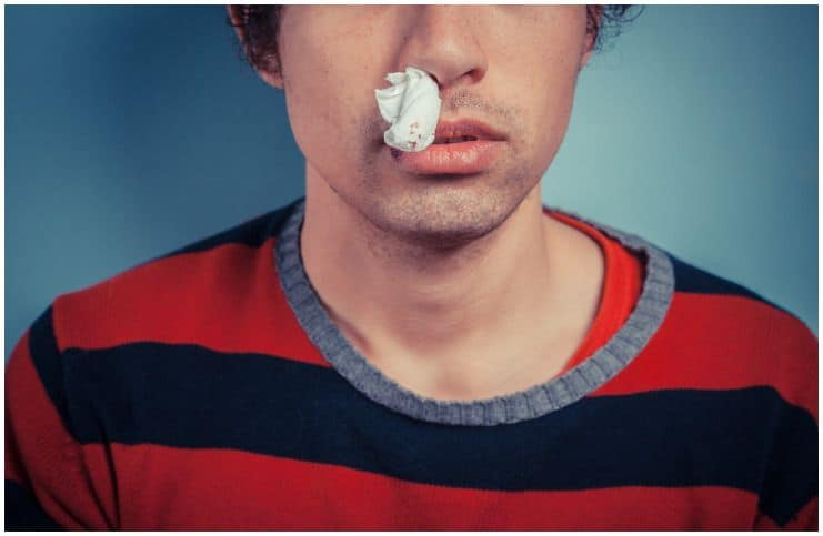 Nosebleeds (Epistaxis) – Spiritual Meaning & Causes
