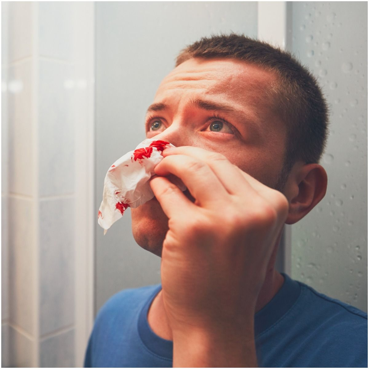 First Aid Management For Nosebleeds