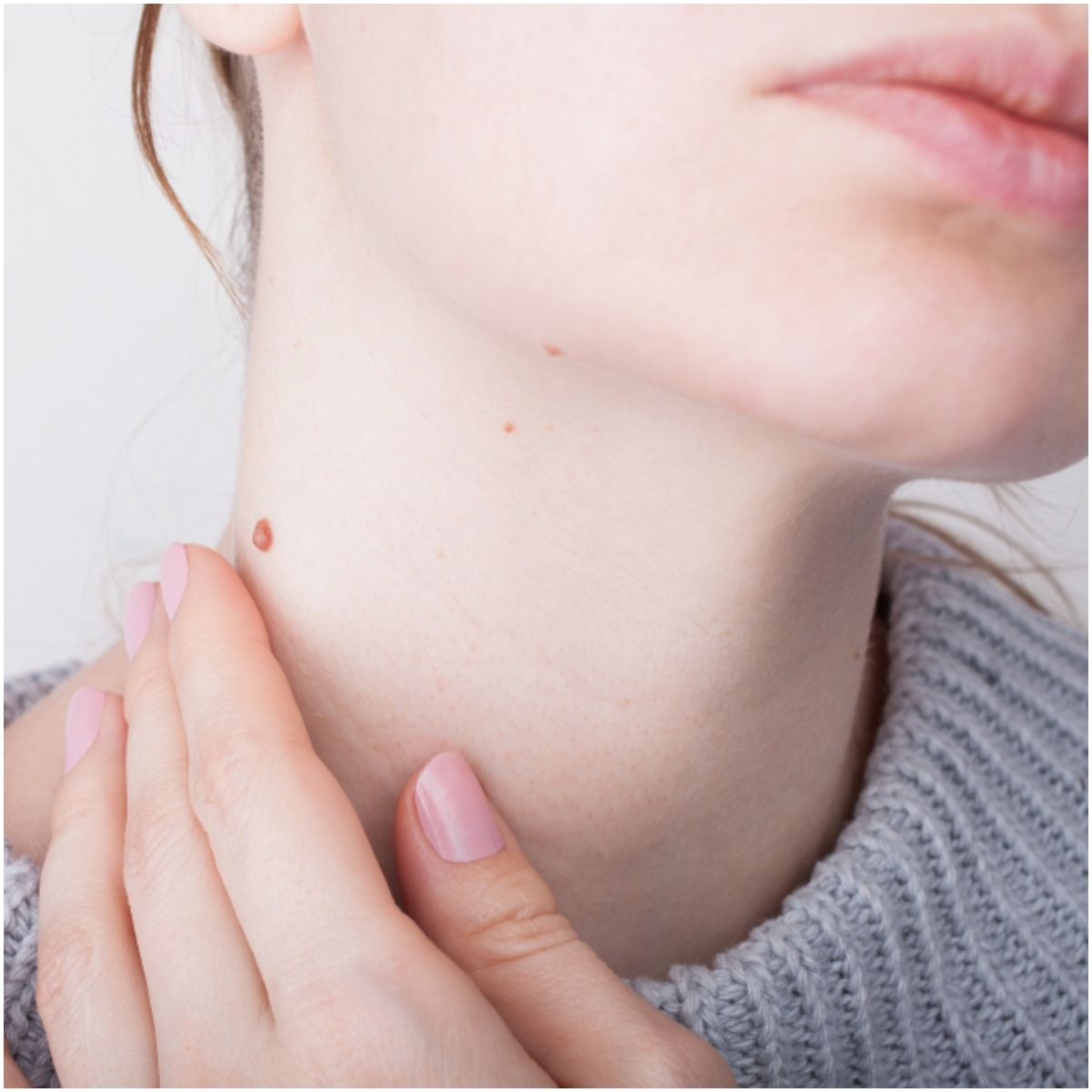 birthmark on the neck