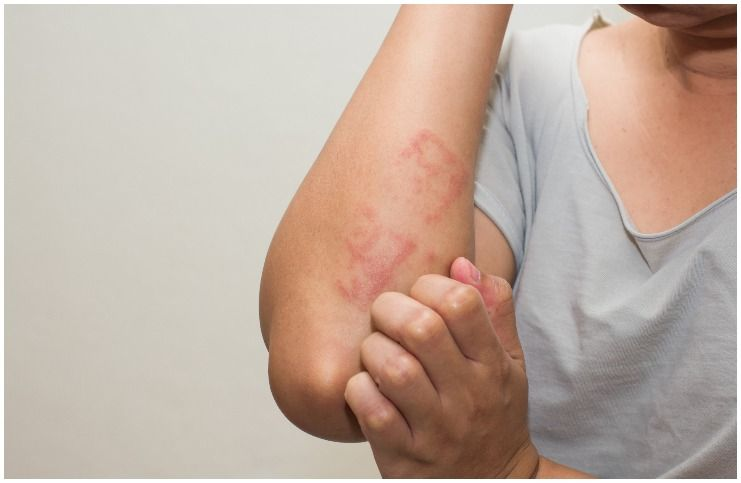 Spiritual and religious aspects of skin and skin disorders