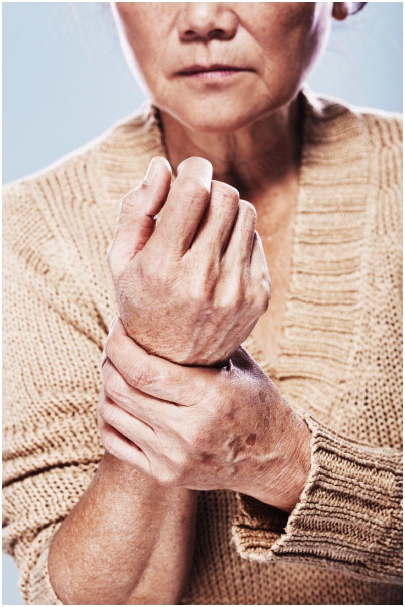 arthritis hand woman